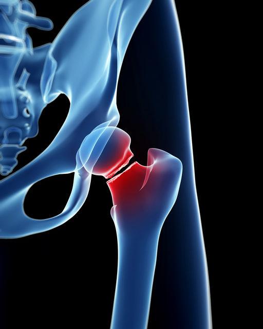 Hay más fracturas óseas en la enfermedad renal crónica