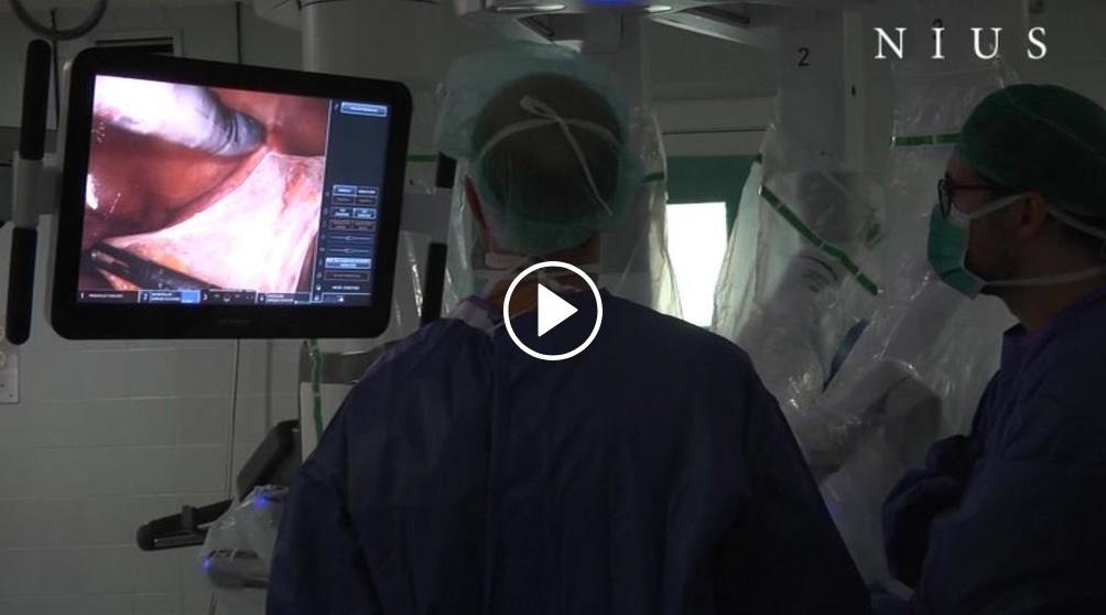 El Hospital de Bellvitge realiza el primer trasplante renal con un robot en el mundo