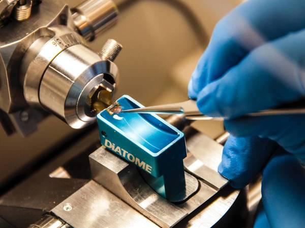 Llega la prueba de precisión de detección precoz de cáncer renal